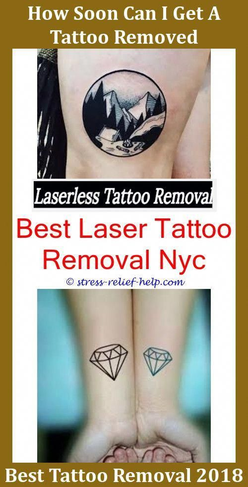 Dark Tattoo Removal Before And After,is laser tattoo removal safe ...