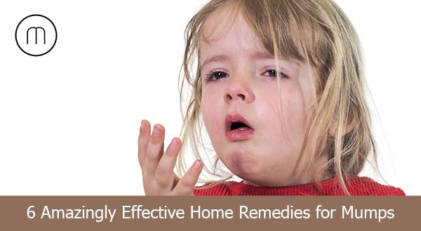 6 amazingly effective home remedies to treat mumps
