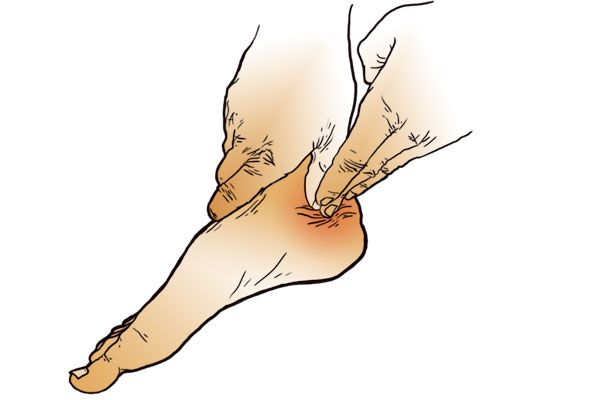 Release It http://www.runnersworld.com/injury-prevention-recovery/plantar-fasciitis-release-technique/slide/3