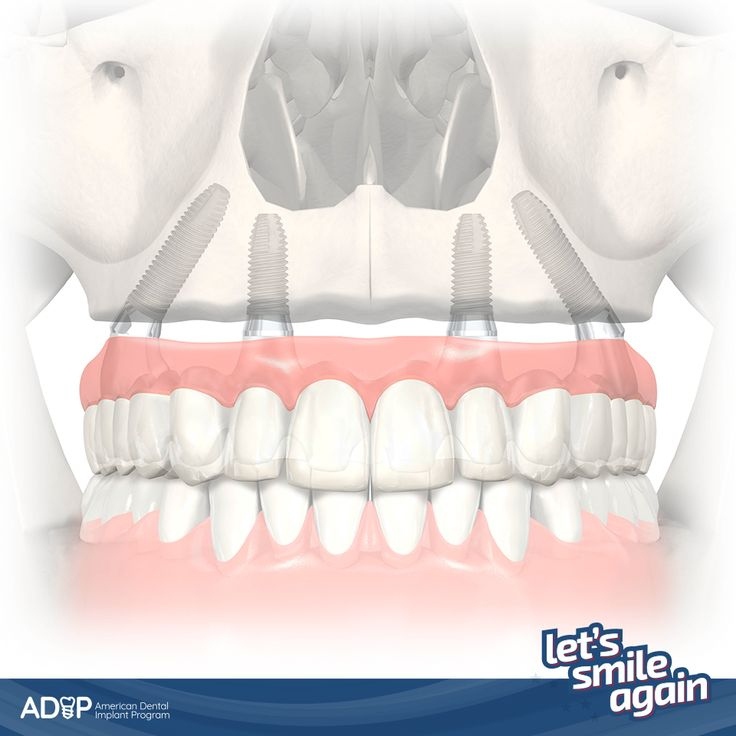 """Have you ever thought that with only 4 implants you can get all your teeth back? Find out about """"All-On-Four"""" and smile again! #ADIP  #LetsSmileAgain --  ¿Ya has imaginado que con apenas 4 implantes puedes volver a tener todos los dientes? ¡Conoce el """"All-On-Four"""" y vuelve a sonreír! #ADIP  #LetsSmileAgain"""