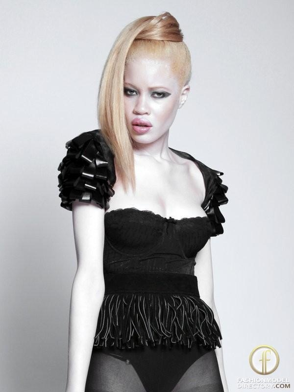 Albinism in humans | definition of Albinism in humans by ...