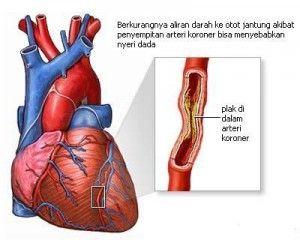 Icp Capsule obat herbal Paling Ampuh Mengobati Penyakit Jantung, Stroke, Kolestrol, Darah Tinggi, Diabetes.