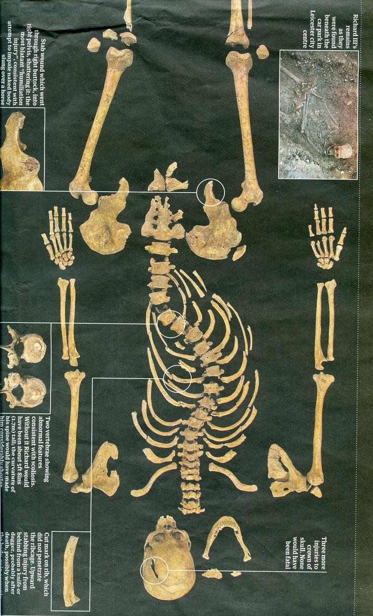 King Richard III  - skeleton
