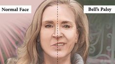 Ayurvedic Treatment of Bell's Palsy (Facial Paralysis), Herbal Remedies ==> http://www.chandigarhayurvedcentre.com/ayurvedic-treatment-of-bells-palsy-facial-paralysis