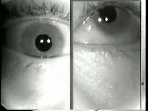the clinical description of myasthenia gravis mg Does this patient have myasthenia gravis jama 2005 apr  there are several clinical tests that can be  it's just a mathematical description of the.