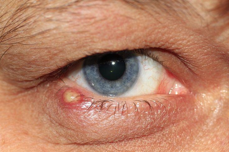 Gerstenkorn am unteren Augenlid