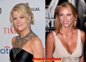 Megyn Kelly plastic Surgery Before and After Breast, Nose Job Photos 1