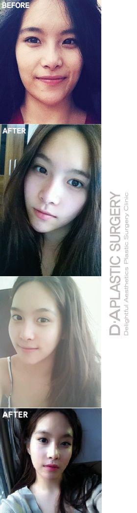 Before and after photos of real DA patients! DA plastic surgery and dermotology located in Gangnam. More info: en.daprs.com Enquiry/make a reservation: info-en@daprs.com #daplsticsurgery #daprs #plasticsurgery #cosmeticsurgery #beauty #korea #model #damodel #facialcontouring #DA #vline #facecontourig #koreanplasticsurgery #jawsurgery #plasticsurgeryinkorea #koreabeauty #koreabeauty #gangnam #gangnamplasticsurgery #beforeandafter #realpatients #beforeafter #DApatient