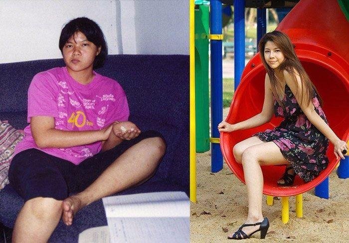 Penyalahgunaan pembakar lemak baru menyebabkan distrofi. Demi memperoleh penampilan bak model, banyak wanita menurunkan ...