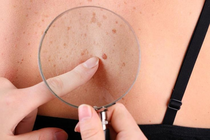 How To Remove Red Moles. You may have seen some red moles appear on your skin, these are small marks of a vivid reddish hue which suddenly emerge on the skin. Do not be alarmed as these moles. Generally, are nothing to worry ...