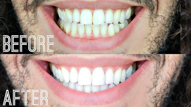 how to get perfect white teeth at home