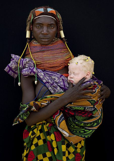Albino baby girl and her Mwila mother in Angola, by Eric Lafforgue
