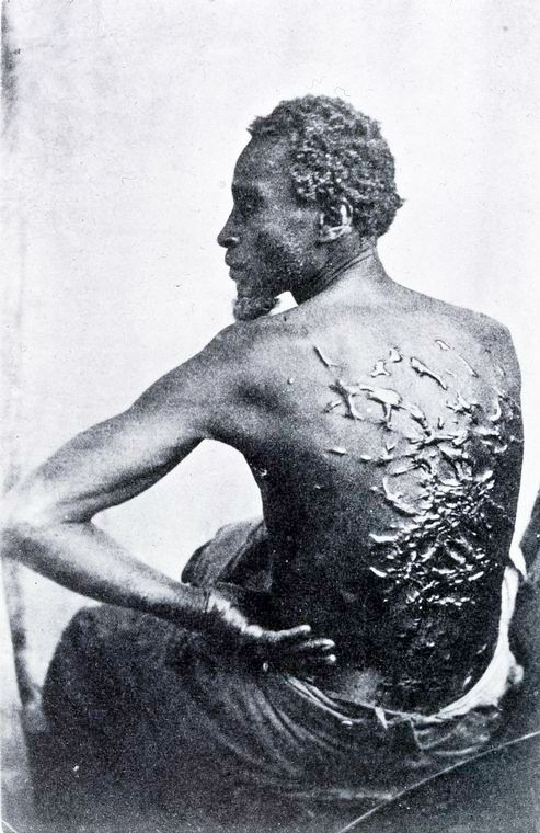 A former slave reveals the scars on his back from whippings before he escaped 1863