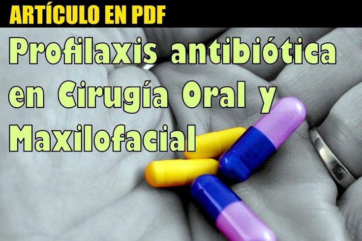PDF: Profilaxis antibiótica en Cirugía Oral y Maxilofacial | Odontología - Ovi Dental