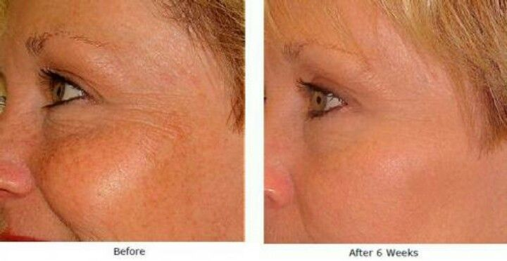 Wrinkles, acne, scars, sun damage and so much more. Check out my facebook for more details  https://www.facebook.com/pages/Skincerity-by-Taylor/485491041513173