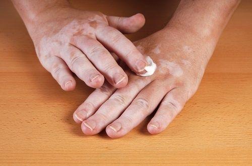 Le vitiligo : pourquoi il apparaît et comment l'éliminer ?