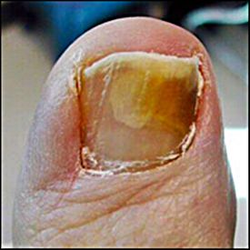 Discolored Toenails  http://www.yellowtoenailscured.com/why-do-i-have-discolored-toenails/