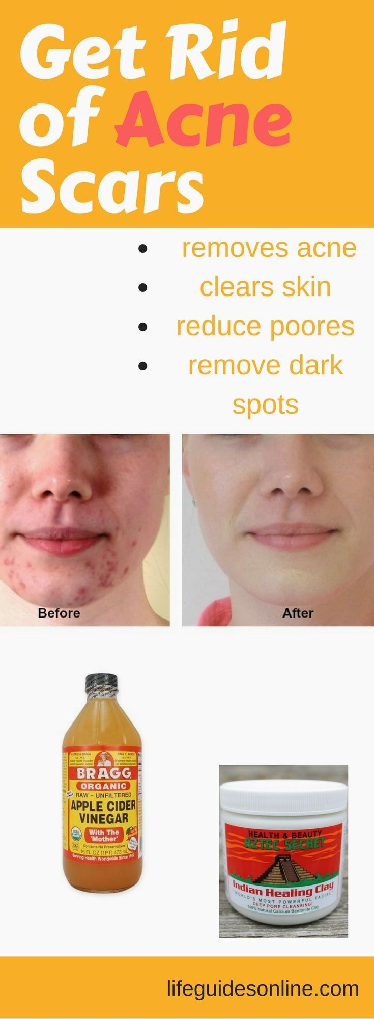 Pin On Acne Scar Removal