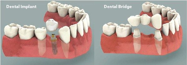 Should I Get a Tooth Bridge or an Implant   IndianHealthGuru