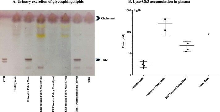 Fabry Disease male patient on ERT 10 yrs... 2018 paper..Fig. 3.  Urinary excretion of glycosphingolipids (A). Total lipids were extracted and separated by high-performance thin layer chromatography. CTH, ceramide trihexoside (Gb3 marker). Lyso-Gb3 accumulation in plasma (B); the extracted plasma Lyso-Gb3 level was measured in nmol/L. Full citation in the note above. Source link in the comments.