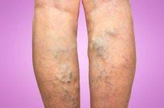 Varices : 2 remèdes fabuleux qui peuvent aidernoté 3.8 - 6 votes De nombreux adultes souffrent d'insuffisance veineuse et le constatent à travers des problèmes de jambes lourdes et douloureuses, de membres inférieurs gonflés et de fourmillements. Mais un autre signe plus visible peut en témoigner : les varices. Elles apparaissent lorsqu'une veine endommagée se … More