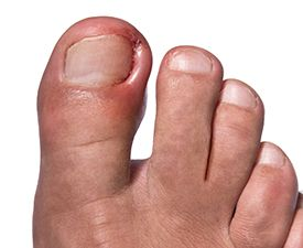 Cleveland Clinic doctors discuss causes of ingrown toenails and offer tips on treatment and prevention.