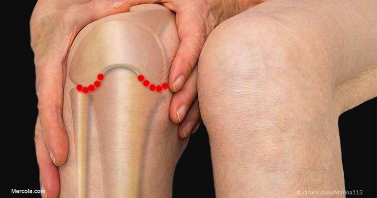 Existe muy poca cantidad de evidencia que sustente el uso de inyecciones de esteroides para abordar la osteoartritis de rodilla. http://ejercicios.mercola.com/sitios/ejercicios/archivo/2017/08/04/tratamiento-dolor-de-rodilla.aspx?utm_source=espanl&utm_medium=email&utm_content=art2&utm_campaign=20170804&et_cid=DM153290&et_rid=3375298