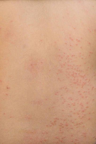detail of rash on back from allergy