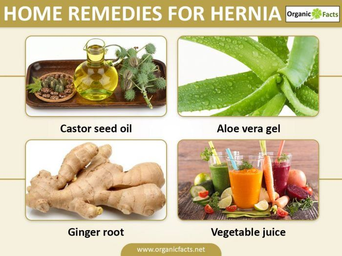 11 Natural Home Remedies For Hernia Natural Home Remedies Home Remedies Remedies