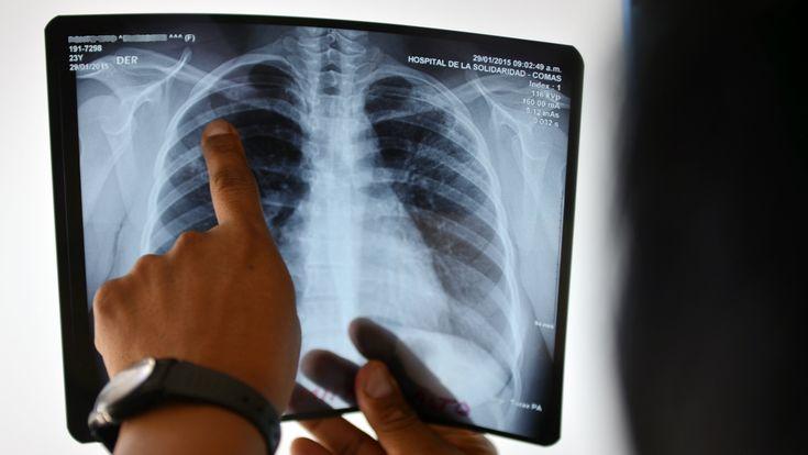 Duizenden patiënten kunnen vanaf vandaag hun medisch dossier inkijken via een app. Vandaag kan dat al in het UZ Leuven, het AZ Groeninge en het AZ Diest. Het is de bedoeling dat nog een twintigtal ziekenhuizen van het Vlaamse Ziekenhuisnetwerk (VZN) volgen, zo schrijft De Tijd.Via de nieuwe patiëntensite en -app 'mynexuzhealth' zijn voortaan alle medische verslagen te consulteren, zeven dagen nadat ze gevalideerd werden.