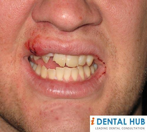 Information About Signs And Symptoms Of The Cracked Tooth, Type of Cracked Tooth, Treatment of Cracked Tooth.
