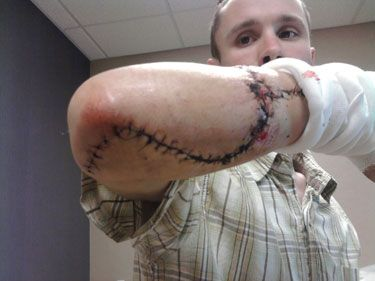 """Power Tool Industry Defends Table Saw Safety as Disabling Injuries Increase:  Adam Thull was building a counter for a bookstore when he noticed a wood panel falling off the edge of his table. As he lunged to catch it, his right forearm got caught on the blade of his Ryobi table saw – and the machine quickly cut completely through one of his forearm bones and a nerve.   >>> """"he lunged to catch it""""<<< It's the saw's fault? Dumb-ASS! """"if the tools not right the guy's not bright""""...old adage"""