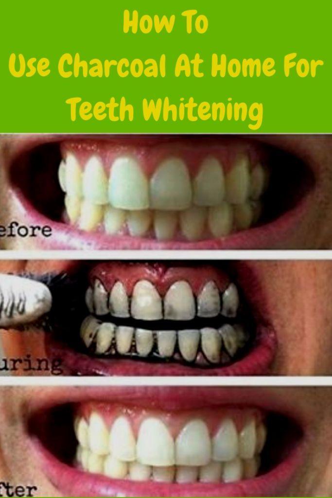 100 natural teeth whitening charcoal reviews