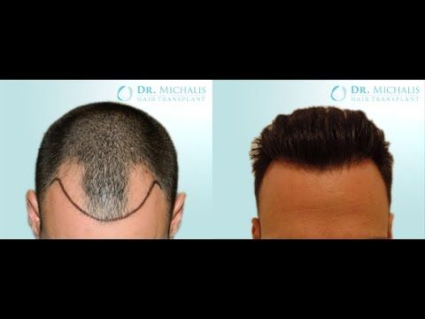 2735 Grafts FUE Hair Transplant Dr. Michalis: for more information visit our website: http://www.hairtransplant-drmichalis.com/real-cases/