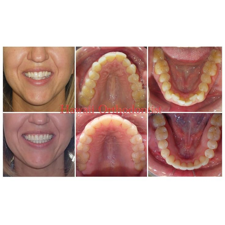 Before and After for some #tbt  #hawaiiorthodontist #orthodontist #orthodontics #braces #adultbraces #beforeandafter #transformation #dentalassistant #dentist