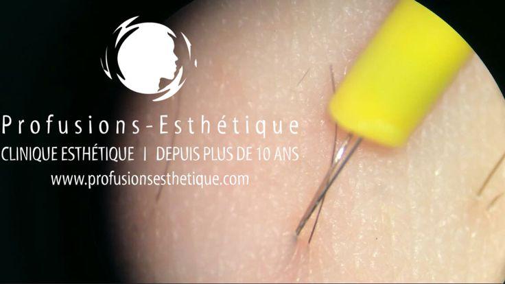 Photo d'un filament d'électrolyse vu avec un microscope.  Le poil et la peau lors de l'épilation a l'électrolyse micro-electrolyse  www.profusionsesthetique.com
