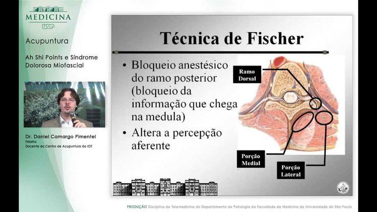 Aula Medicina USP: Pontos Gatilho - Dr. Daniel C. Pimentel - médico especialista em coluna ❤ https://www.youtube.com/watch?v=F7QWnZQLa0s