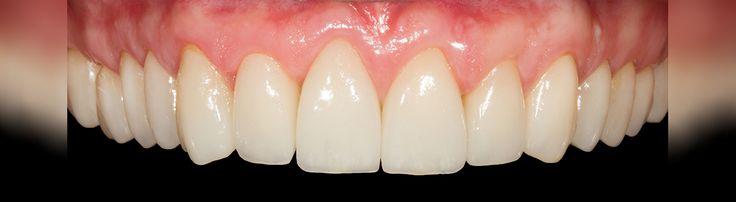Il  punto forte di faccette dentali realizzati in Romania è loro estetica eccezionale. Per Voi questi protesi speciali applicati direttamente ai denti per migliorare  l'estetica!  Vi invitiamo a vedere di più qui e contattaci subito! http://www.intermedline.com/dental-clinics-romania/ #clinicadentale #clinicaodontoiatrica #clinicaodontoiatricainRomania #faccettedentali #faccettedentaliinRomania #faccetteinporcellana #faccetteinporcellanainRomania #turismodentale #turismodentaleinRomania…