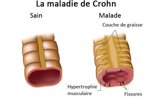 La maladie de Crohn : symptômes et traitement
