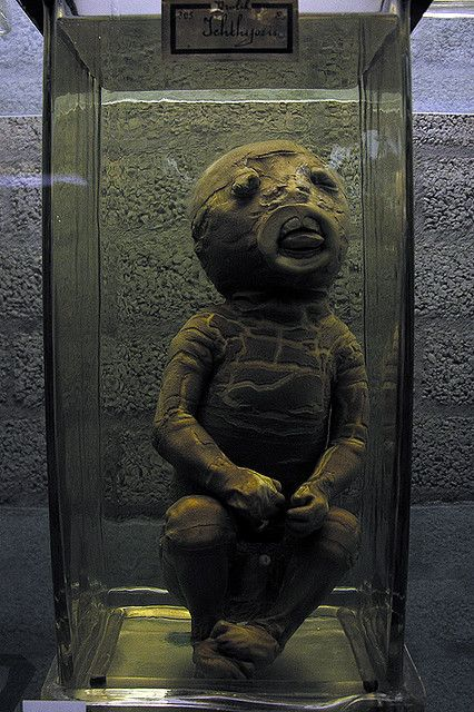 Harlequin Ichthyosis (Photo: Harlequin Fetus from 1880 at Museum Vrolik, in Amsterdam, Holland)