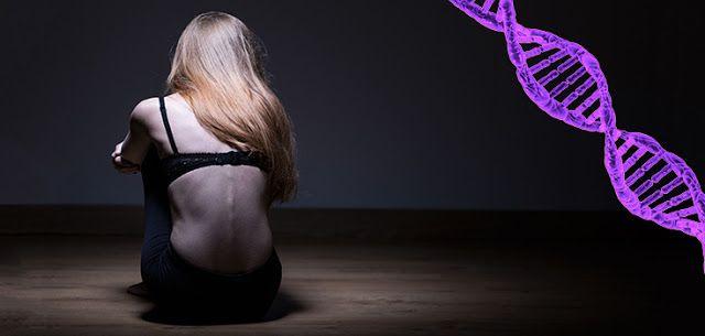 Η ανορεξία μπορεί να είναι γενετική, όχι μόνο θέμα ψυχικής υγείας