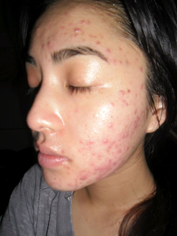 There are a large number of people who experience skin problems at some point in their lifetime, some of the most common are acne, acne scarring, eczema, stretch marks, Scars, Psoriasis, Rosaces, skin tightening Thread veins and wrinkles. All of these con