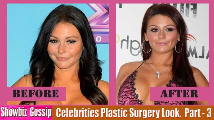 101 Celebrities Before and After Plastic Surgery Look. (21-30) | Part - 3.