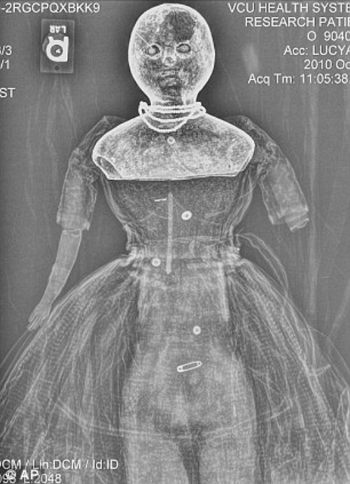 Two 150-year-old dolls have been x-rayed to discover if they were used by Confederate soldiers to smuggle medical supplies past Union blockades during the Civil War. It is thought the large dolls - Nina and Lucy Ann - had their hollowed out papier-mache heads stuffed with quinine or morphine for Confederate troops. The scans proved that the contours inside their craniums and upper bodies were roomy enough to carry medicines. The next step could be forensic testing for any residual drug…