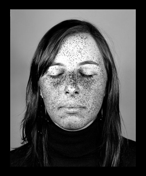 The Damage Is Done, Those aren't natural freckles-UV Photographs of sun damaged skin