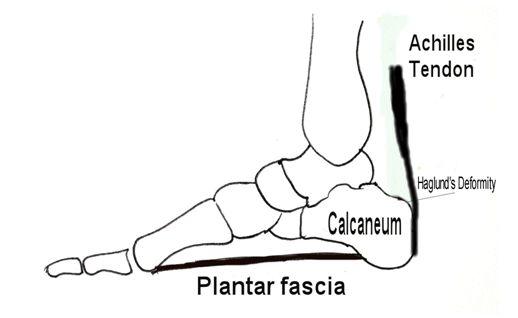 54 best achilles tendonitis images on pinterest