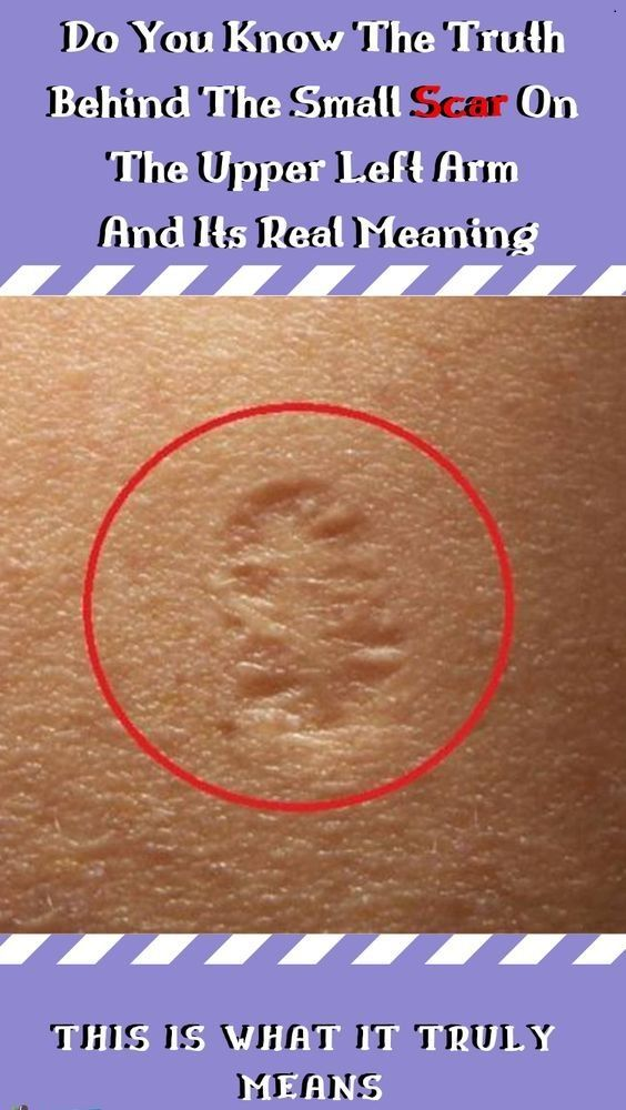 This Is The Truth Behind The Scar Everyone Has On …