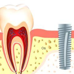 Effet des antidépresseurs sur les os : plus d'échecs d'implants dentaires | PsychoMédia