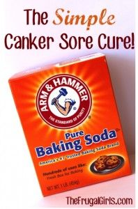 Canker Sore Cure from TheFrugalGirls.com
