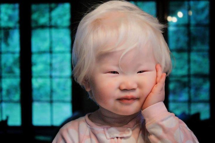 Albino asian woman